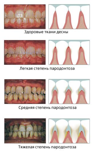 kak-spasti-zuby