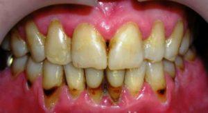 spasti-zuby-lekarstva