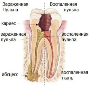 hronicheskij