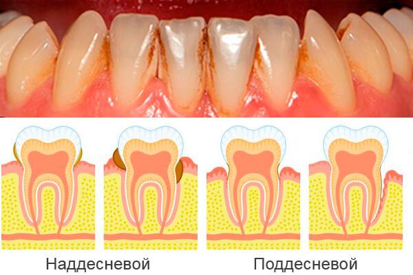 nakoplenie-zubnogo-kamnya