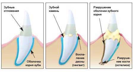 nakoplenie-zubnogo-kamnyanakoplenie-zubnogo-kamnya