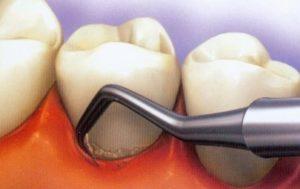 nuzhno-li-udalyat-zubnoj-kamen