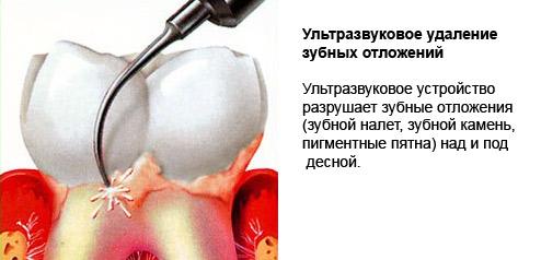 snyatie-zubnogo-kamnya-ultrazvukom-tseny