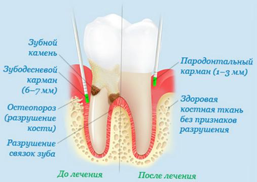 zubnoj-kamen-foto