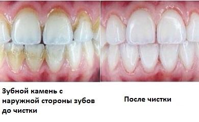 zubnoj-kamen-foto-do-i-posle