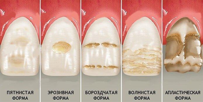 gipoplaziya-emali-zubov