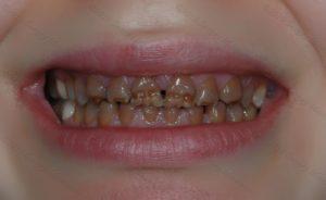 Гипоплазия эмали: фото