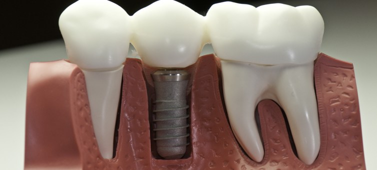ustanovlennyj-implant-zuby