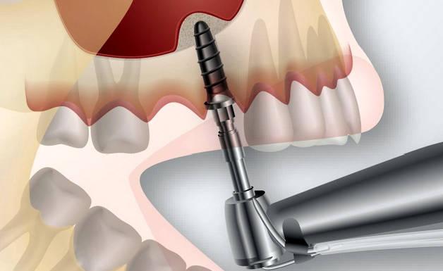 vstavka-implanta-v-zub