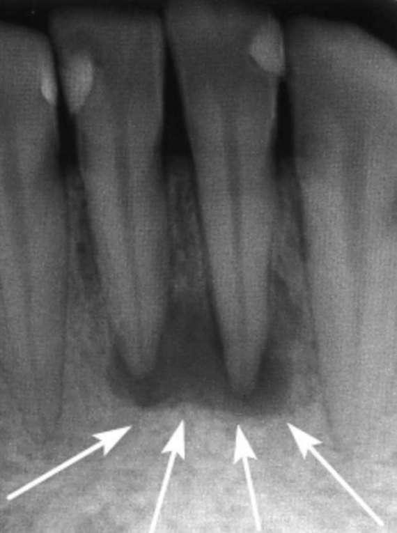 rentgen-snimok-granulemy