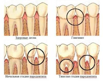 stadii-gingivita-parodontita