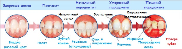 stadii-gingivita