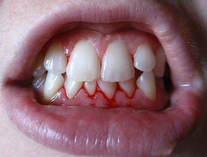 u-detej-gingivit-foto