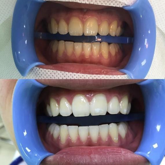 skolko-stoit-otbelivanie-zubov