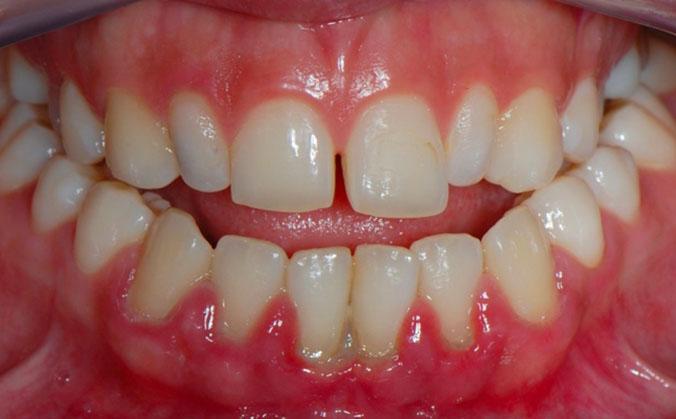 foto-parodontit