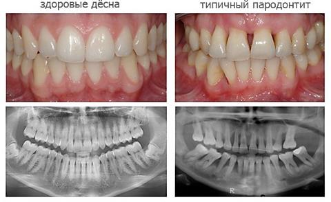 lechenie-desen-pri-parodontite-preparaty