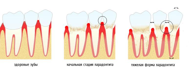 lechenie-desen-pri-parodontite