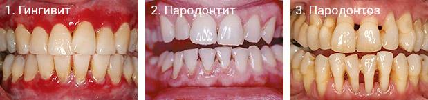 Отличия: пародонтит, пародонтоз и гингивит