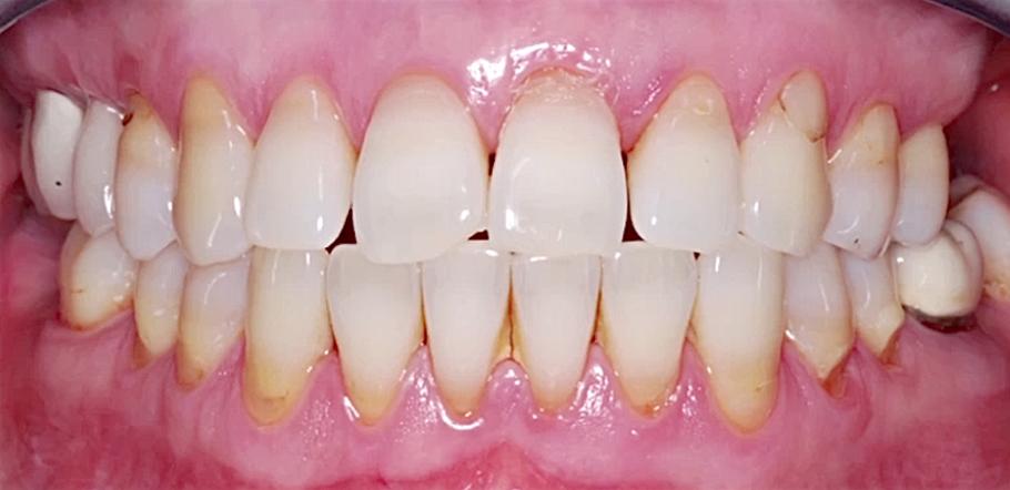 parodontit-neostryj