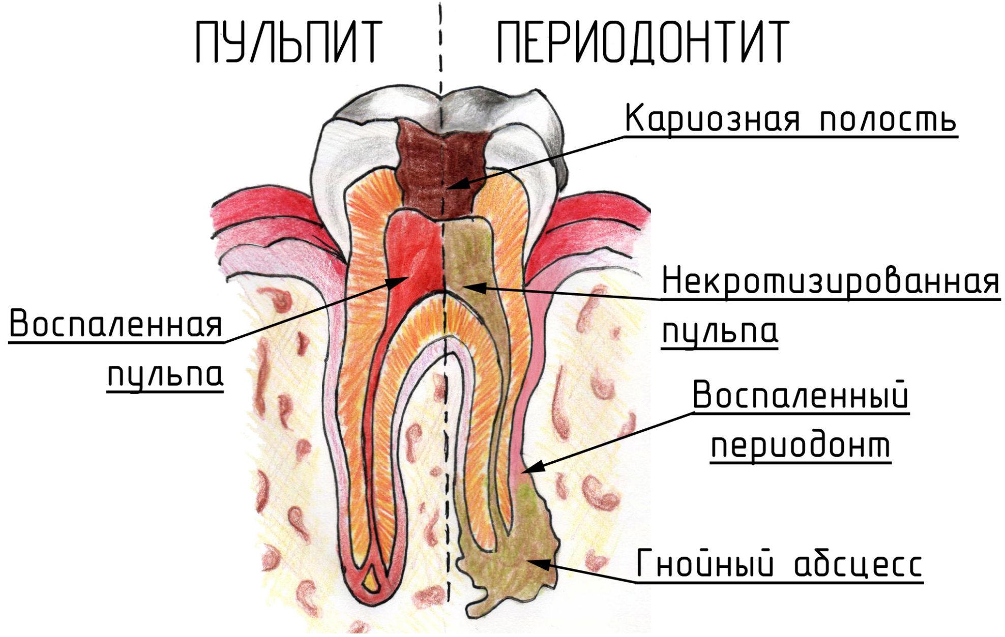 chem-otlichaetsya-ot-pulpita