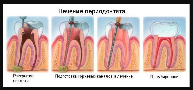etapy-lecheniya
