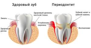periodontit-foto-i-lechenie