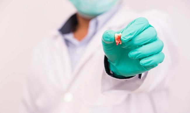 udalennyj-zub