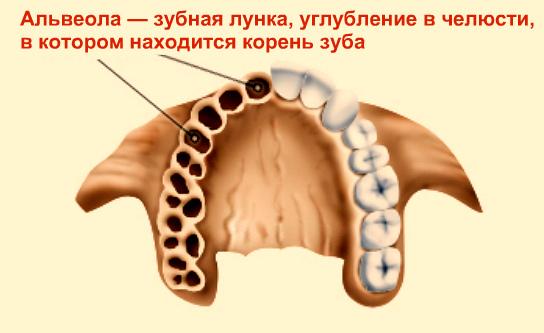 alveolit-linki-zuba-lechenie