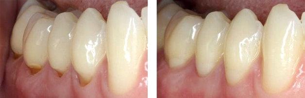 До и после лечения: фото