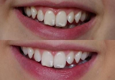 Флюороз зубов: фото