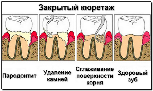 kyuretazh-zubov