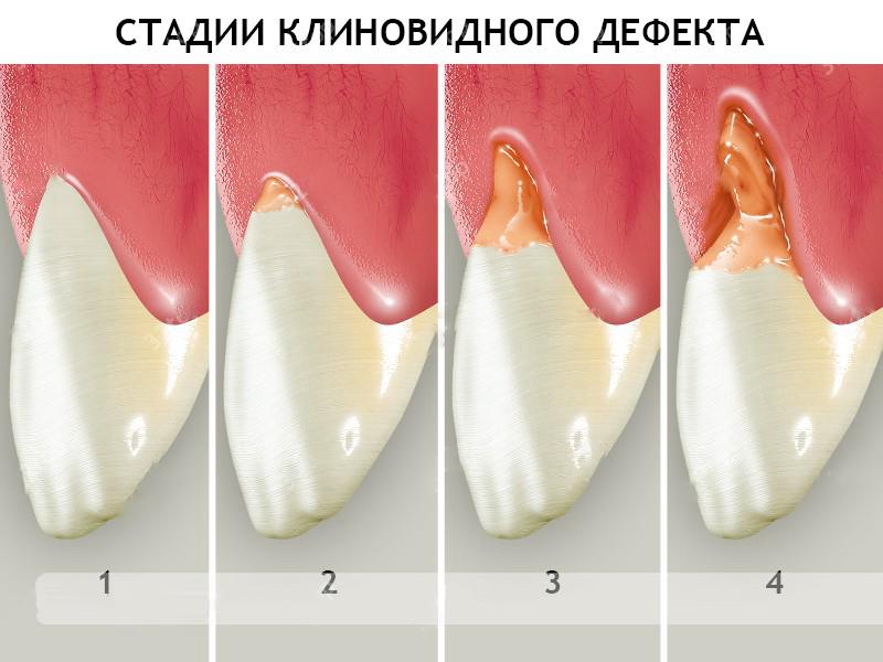 stadii-i-prichiny