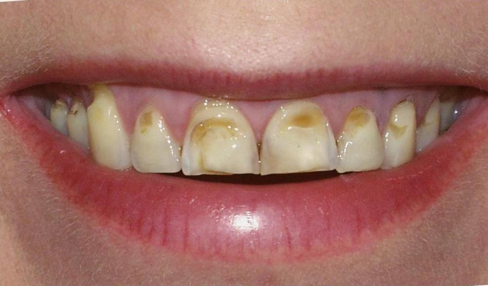Эрозия эмали зубов: фото