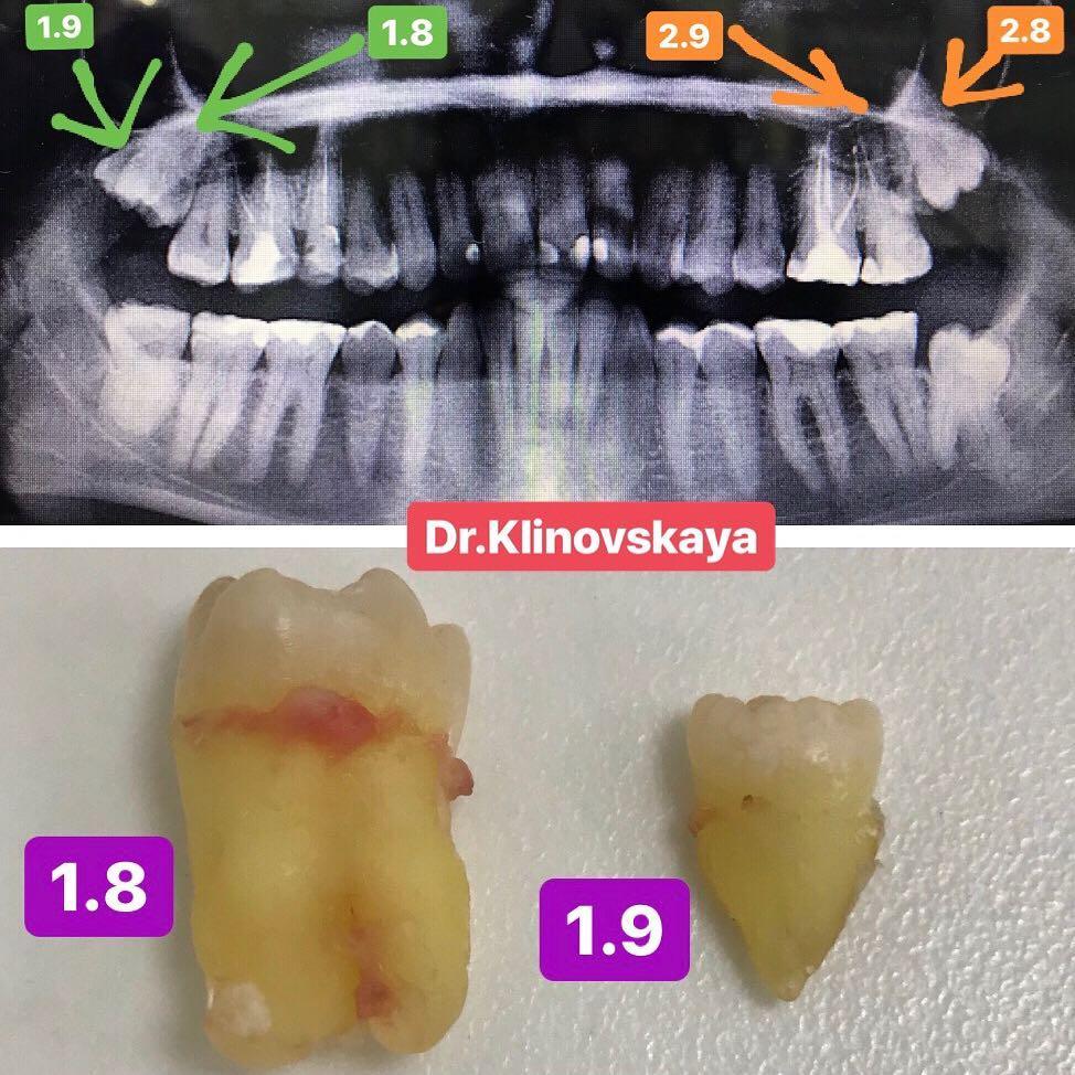 kak-vyglyadyat-sverhkomplektnye-zuby