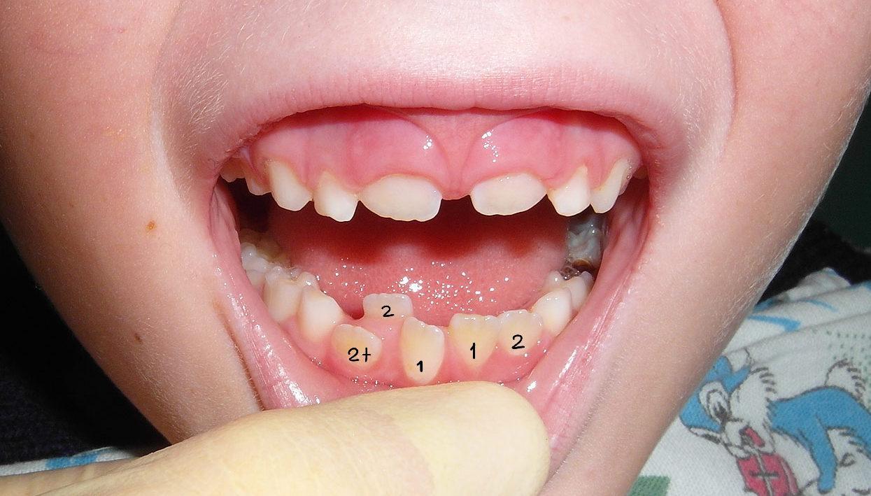 lishnie-zuby