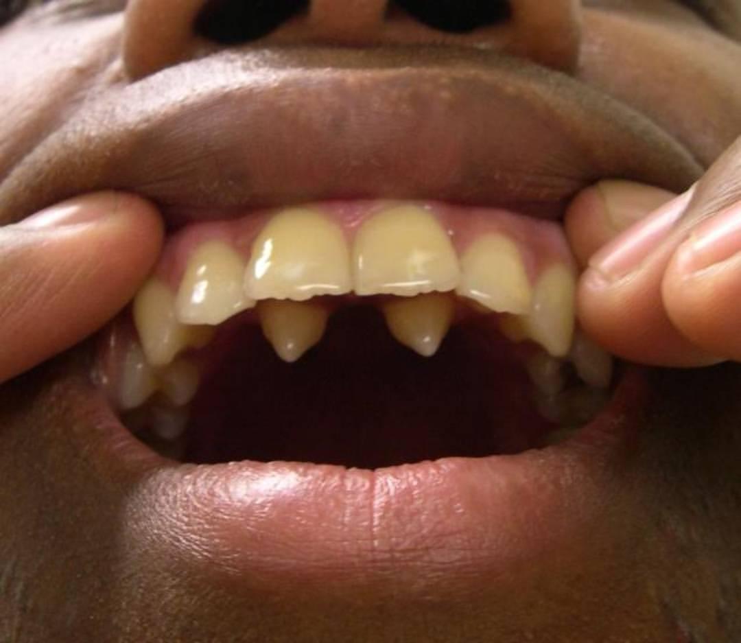 poliodontiya-foto