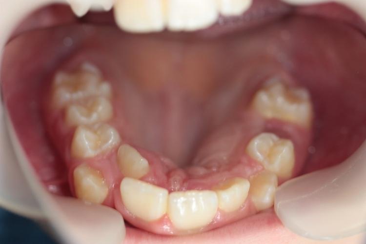 poliodontiya-giperdontiya
