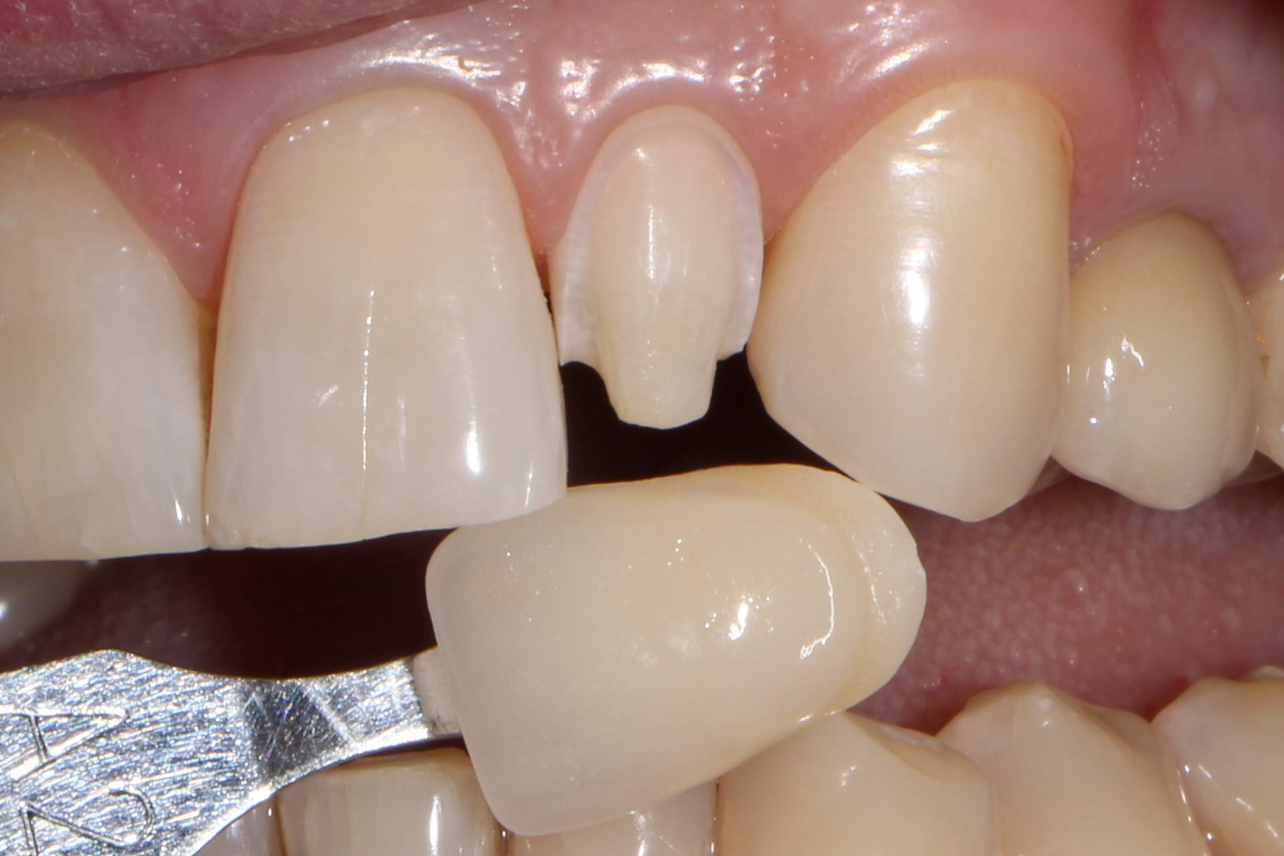 obtochka-zubov-pod-viniry