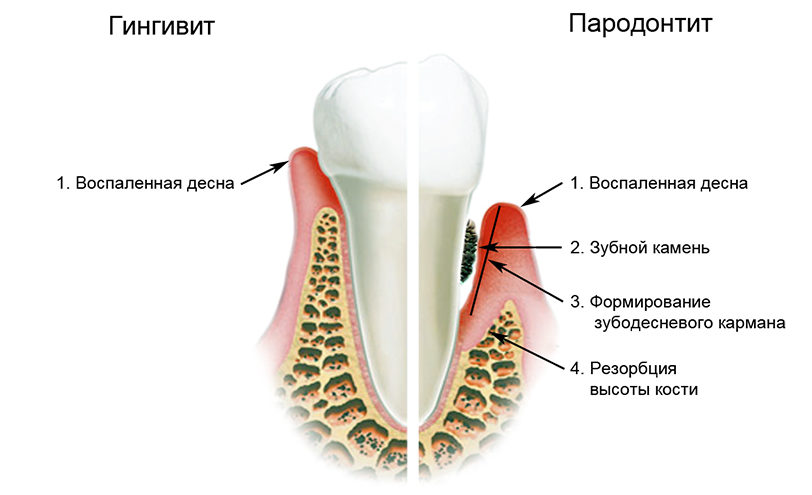 gingivit-parodontit