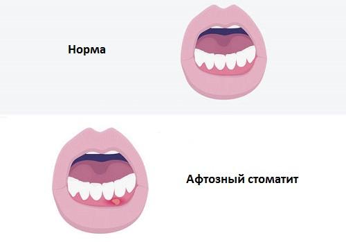 stomatit